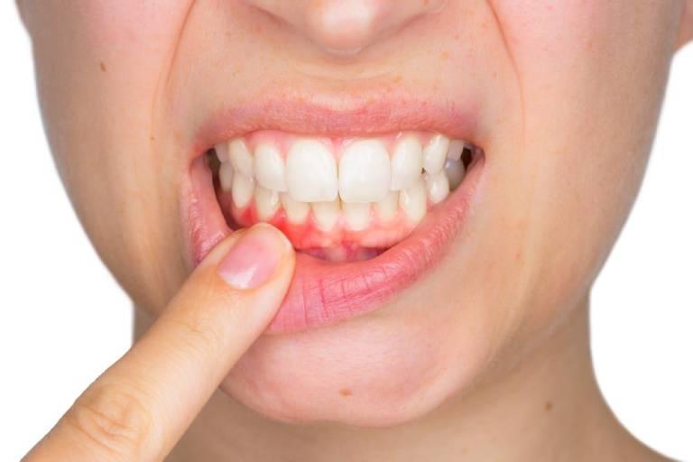 Nguyên nhân dẫn đến áp xe răng