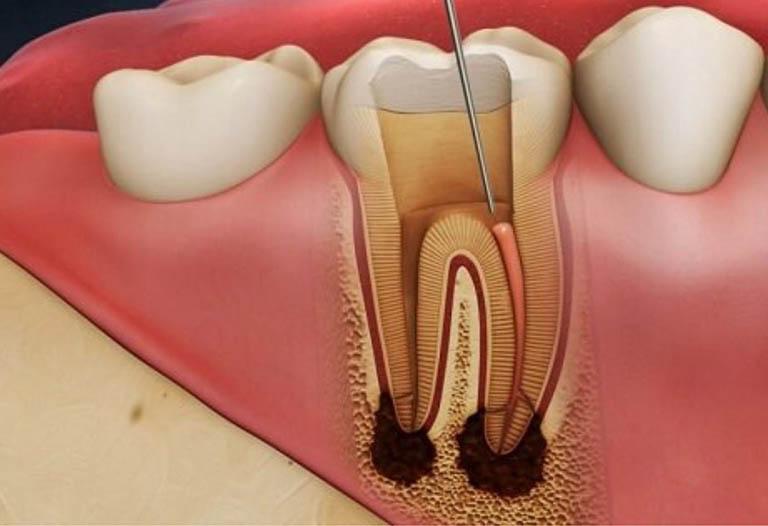 áp xe răng hàm dưới