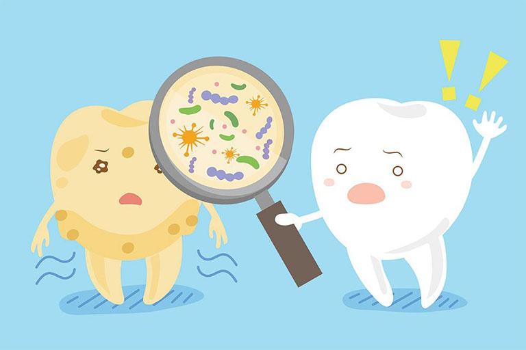 áp xe răng khôn có nguy hiểm không