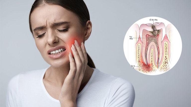 bị áp xe răng có nguy hiểm không