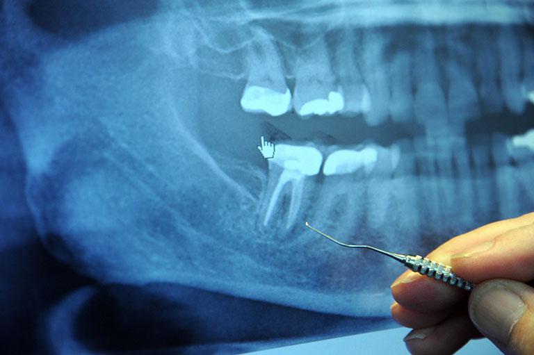 bị áp xe răng nên ăn gì