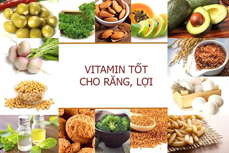 viêm lợi uống vitamin gì