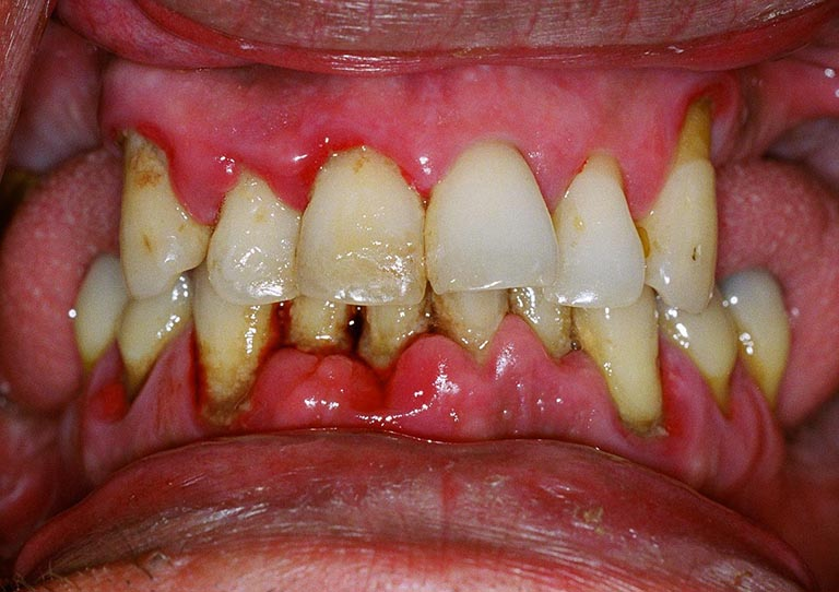 Bị viêm nha chu có niềng răng được không