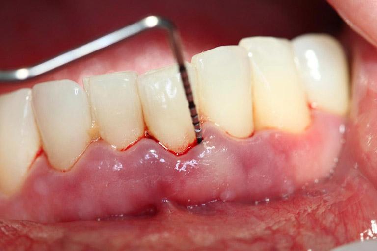 những biến chứng của bệnh sâu răng