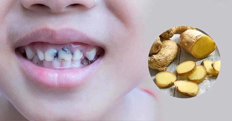 chữa sâu răng bằng gừng