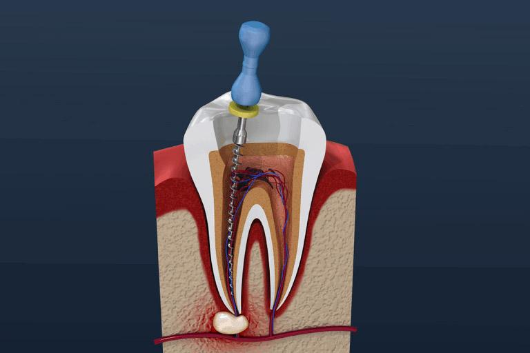 chữa tủy răng cấm