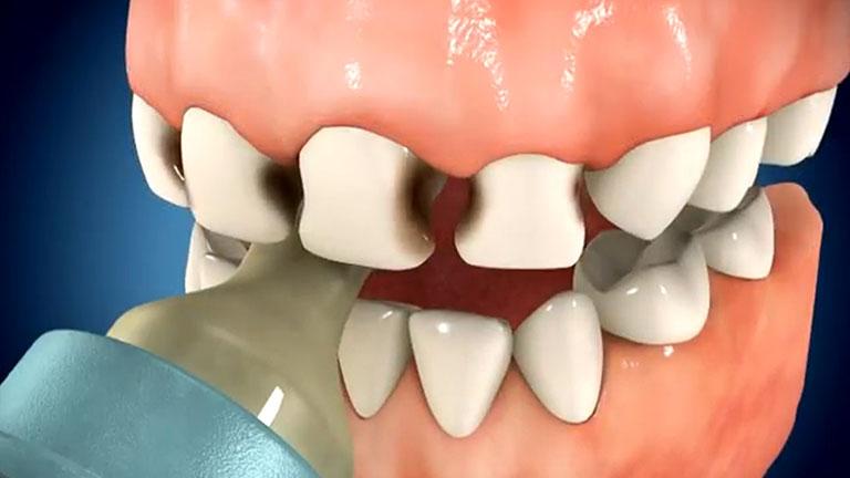 Hội chứng sâu răng do bú bình