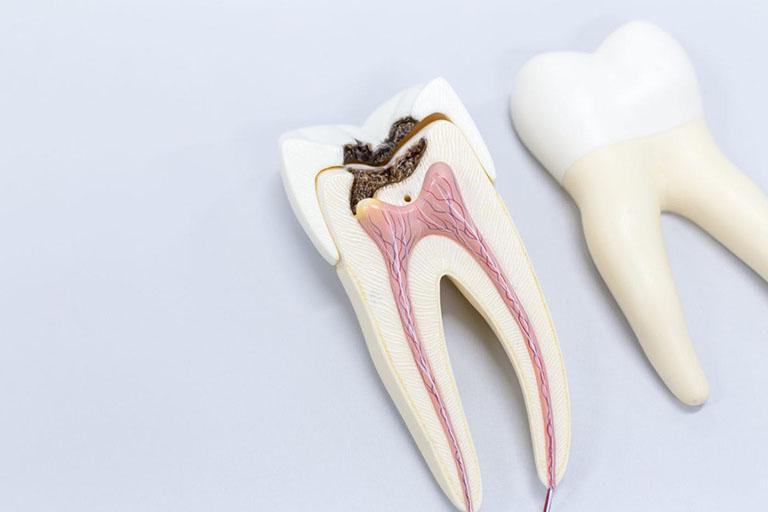 lấy tủy răng hàm mất bao lâu