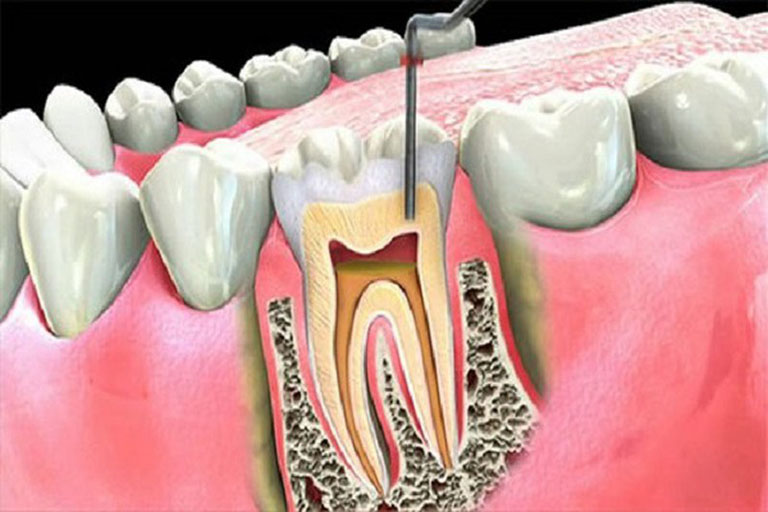 răng đang bị áp xe có nhổ được không