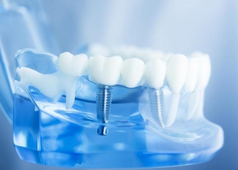 Răng bị chết tủy có nên nhổ