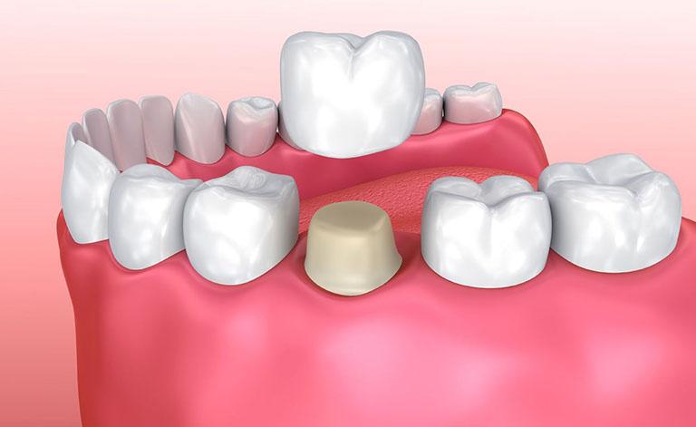 răng bị ê buốt sau khi bọc sứ