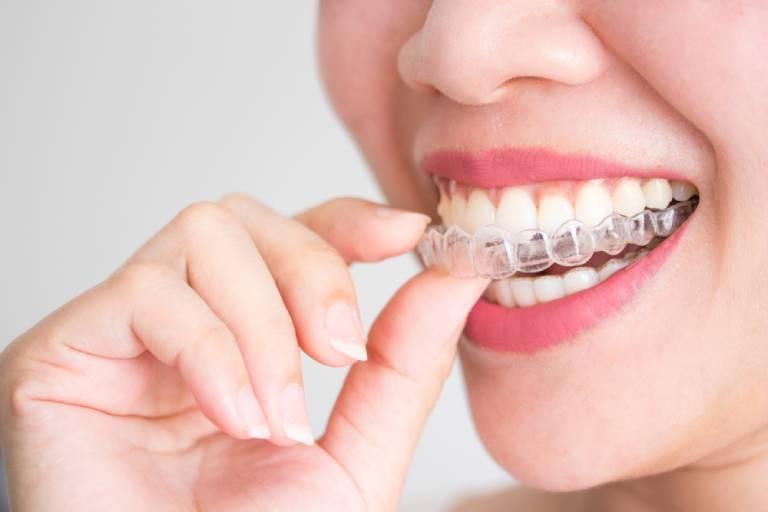Những phương pháp niềng răng cho người bị sâu răng