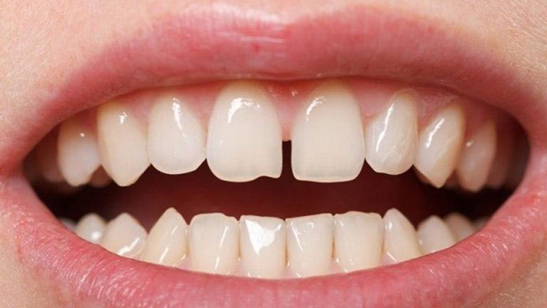 răng đã lấy tủy có niềng được không