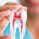 Răng đang đau có lấy tủy được không?