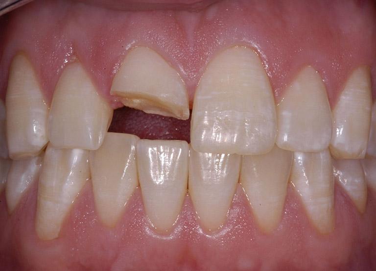 nguyên nhân khiến răng ê buốt