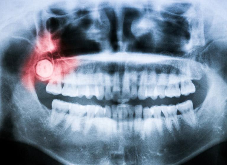 cách chữa sâu răng khôn