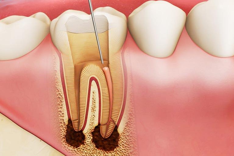 răng chết tuỷ đổi màu