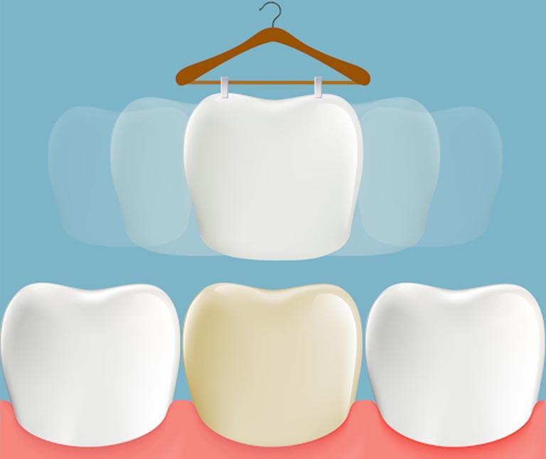 Răng ngả màu sau lấy tủy