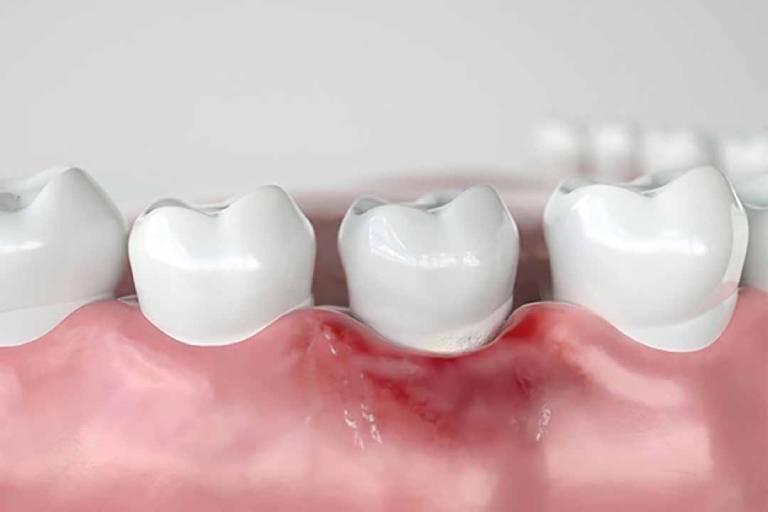 Răng sâu bị chảy máu liên tục có nguy hiểm không?