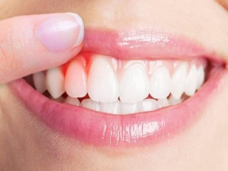 Răng sâu chảy máu: Nguyên nhân và cách chữa trị