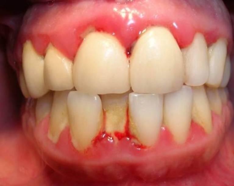 Các biểu hiện răng sâu chảy máu