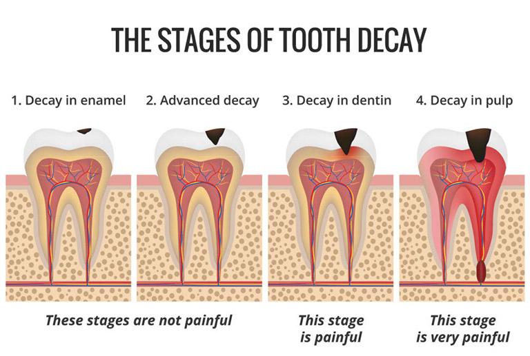 triệu chứng răng sâu vào tủy