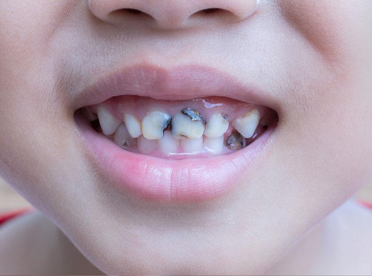 triệu chứng người bị sâu răng