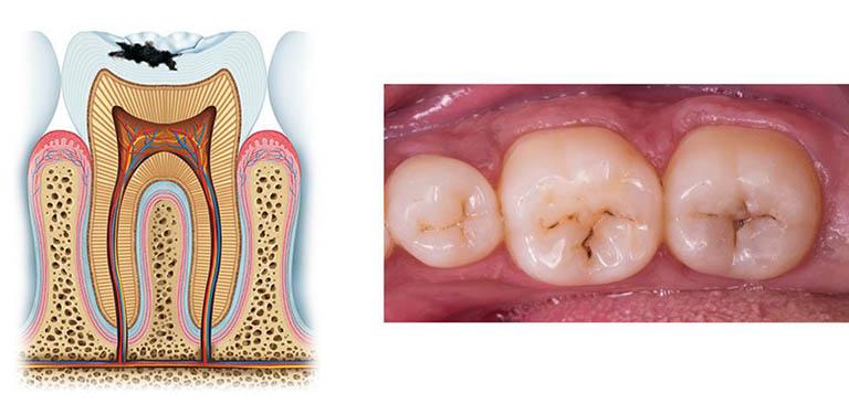 triệu chứng sâu răng
