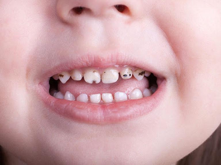 răng sâu liệu có lây không