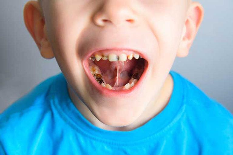 sâu răng có gây hôi miệng