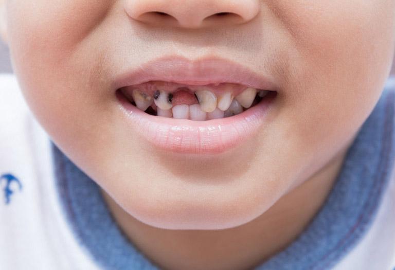 sâu răng ở trẻ em như thế nào