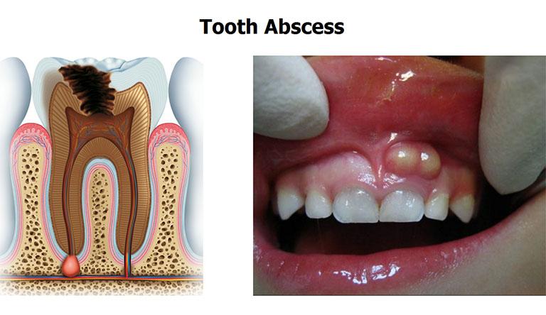 áp xe răng sữa có nên nhổ không