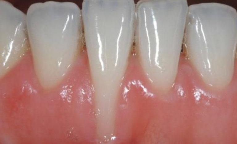 Tụt lợi gây chảy máu chân răng