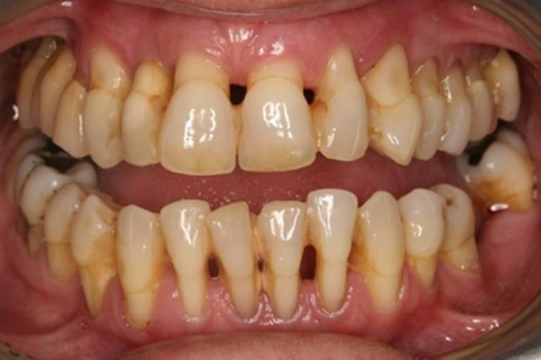 Tụt lợi hở chân răng: Nguyên nhân, dấu hiệu và điều trị