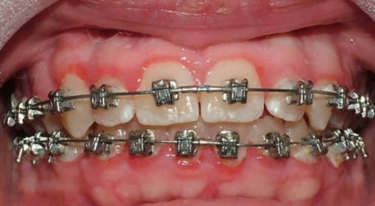 Dấu hiệu tụt lợi khi niềng răng và cách khắc phục