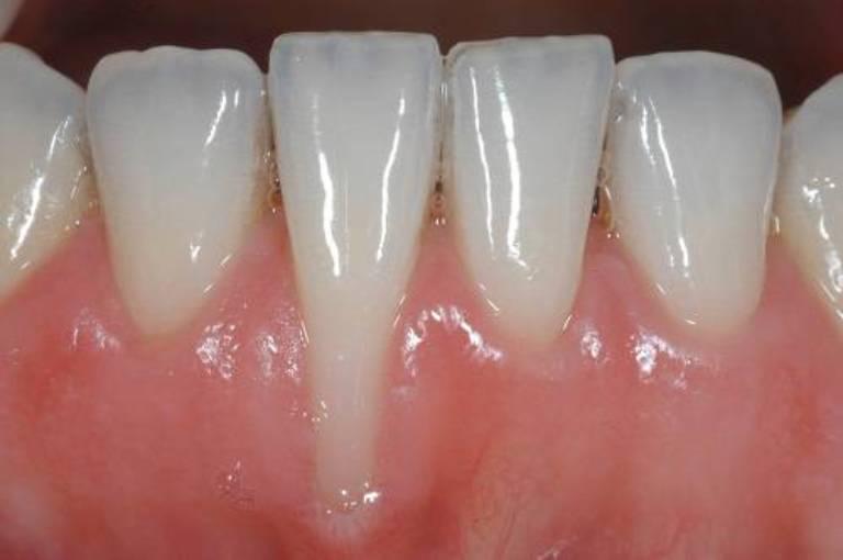 Nguyên nhân gây tụt lợi khi niềng răng