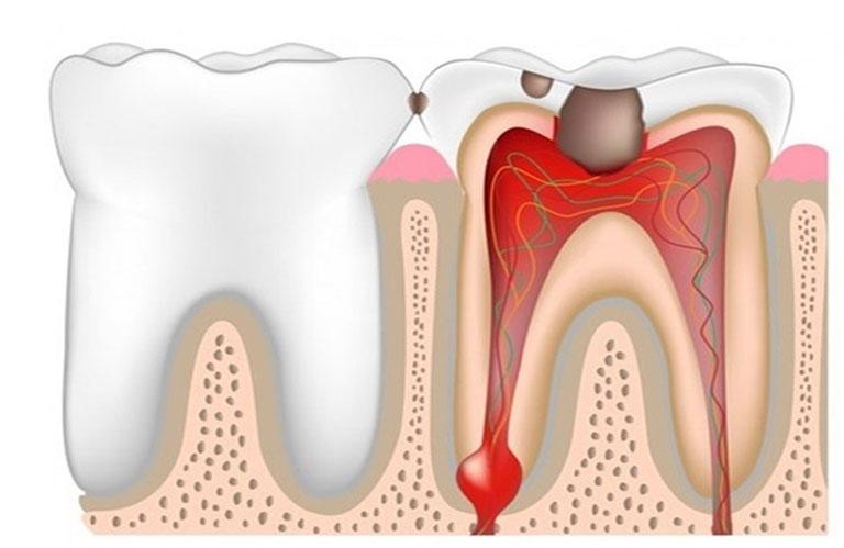 chức năng của tủy răng