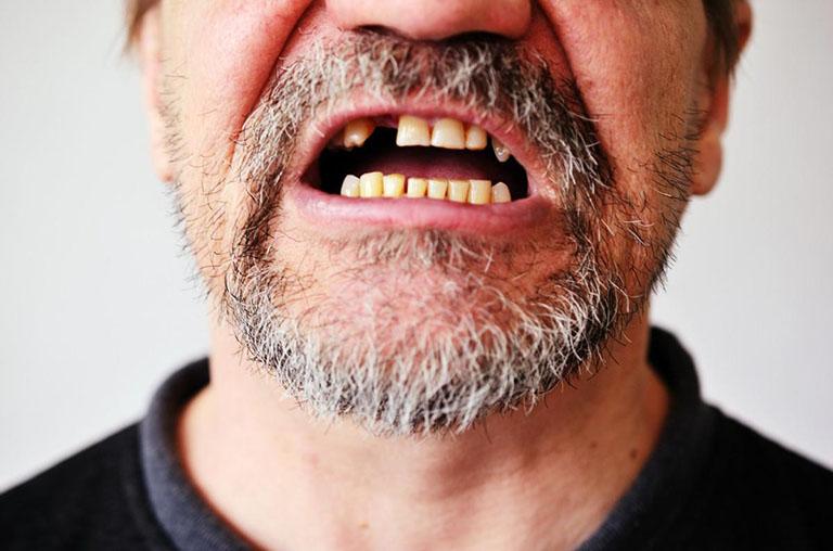 tủy răng bị thối