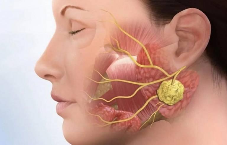 Nguyên nhân dẫn đến viêm khớp thái dương hàm