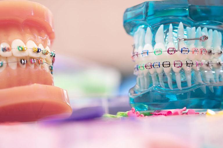 bị viêm lợi khi niềng răng