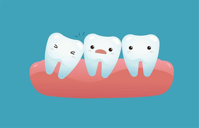 chữa viêm lợi trùm răng khôn