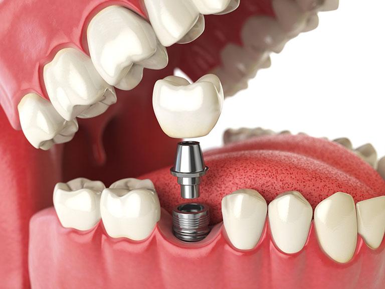 viêm nha chu gây mất răng