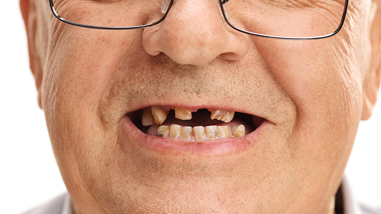 viêm nha chu răng lung lay