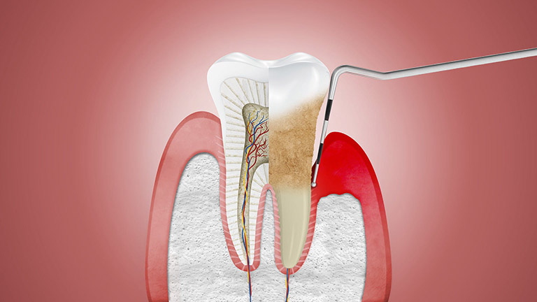 nguyên nhân viêm nướu răng