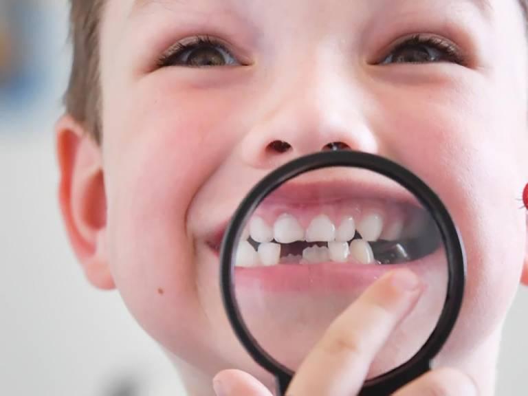 Viêm nướu răng cấp tính ở trẻ nguy hiểm không?