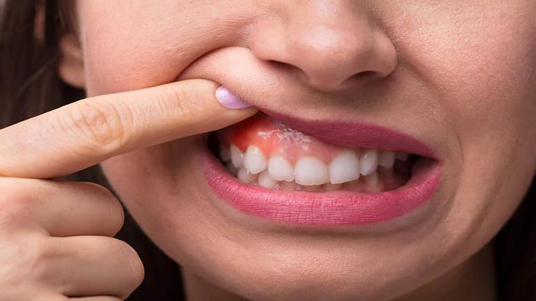 viêm nướu răng là gì