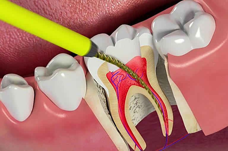 nguyên nhân viêm tủy răng cấp