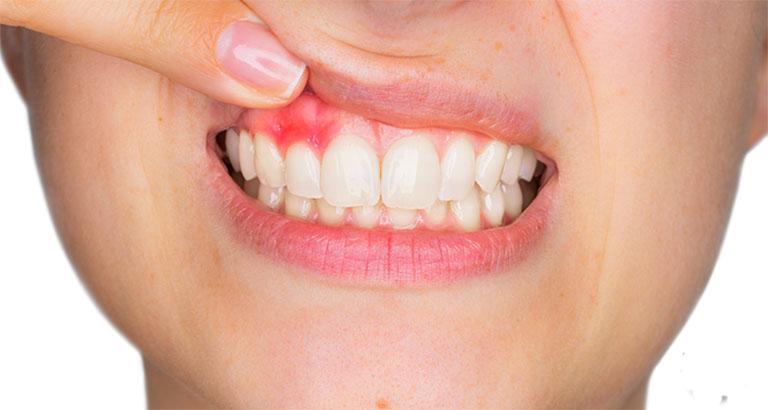 Viêm tủy răng để lâu có sao không