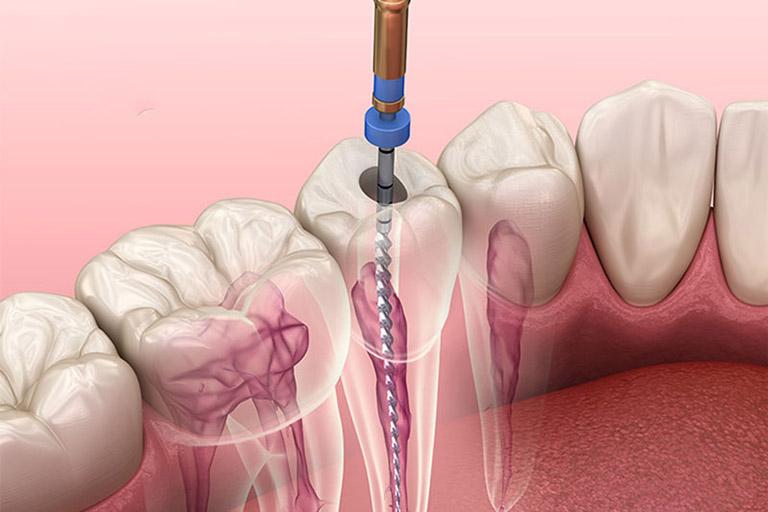 Viêm tủy răng hoại tử