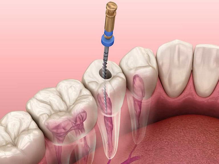 Viêm tủy răng mãn tính